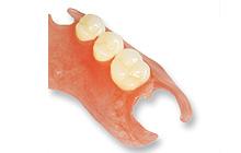 バネの無い部分入れ歯