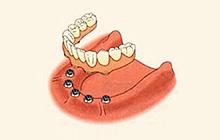 インプラントオーバー義歯